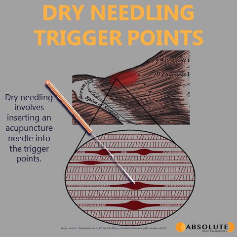 Picture showing a trigger point in the muscle and how dry needling involves inserting an acupuncture needle into the trigger point