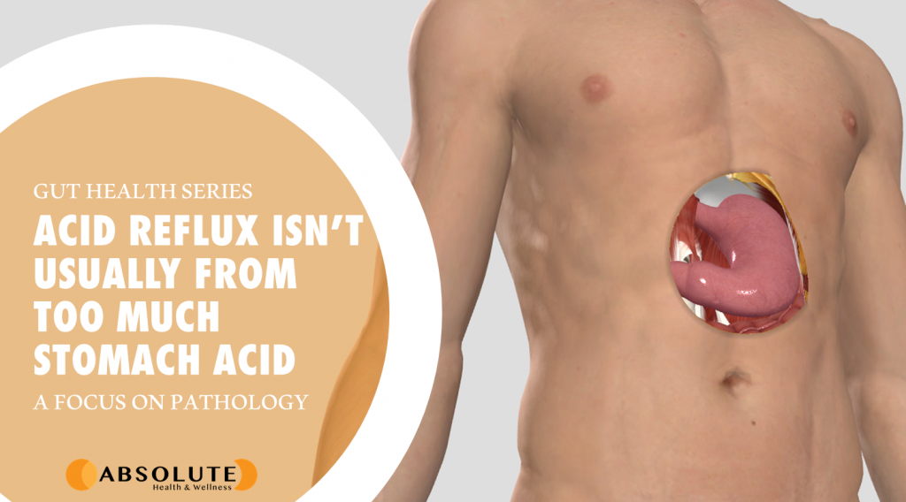 male model with hole showing stomach underneath the skin with text bubble saying acid reflux isn't from too much stomach acid