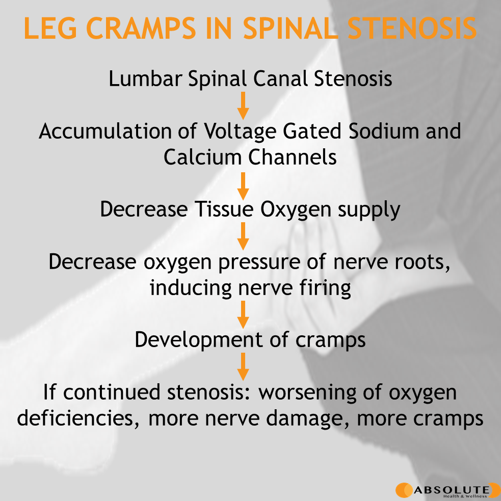 evolution of leg cramps in spinal stenosis from ion change to hypoxia to nerves to muscle cramps