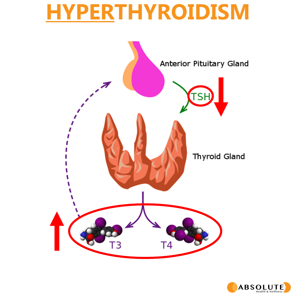 thyroid physiology involved in hyperthyroidism showing T3 and T4 hormones have increased expression while TSH drops