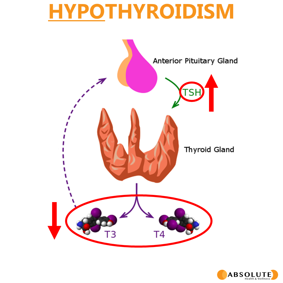 a schematic showing thyroid metabolism in hypothyroidism, including T3 and T4 and how when they drop, TSH will increase