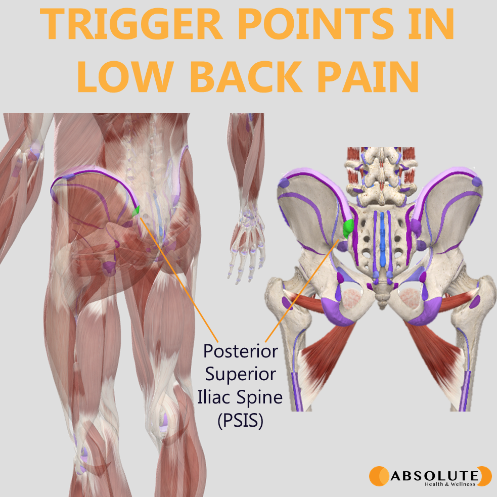 anatomical model of the locations of common trigger point in low back pain