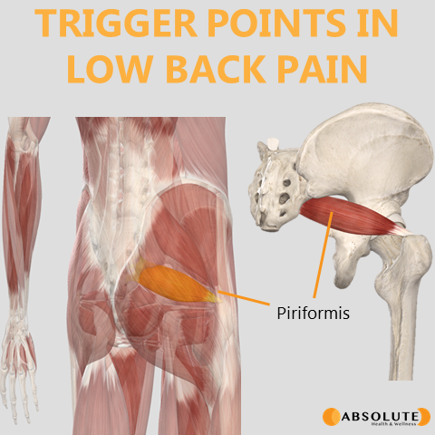 Musculoskeletal model highlighting trigger points in the piriformis muscle, which are common in low back pain