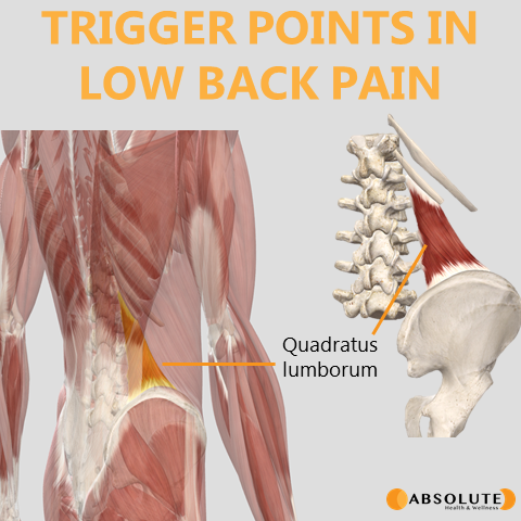 Musculoskeletal model highlighting trigger points in the quadratus lumborum muscle, which are common in low back pain