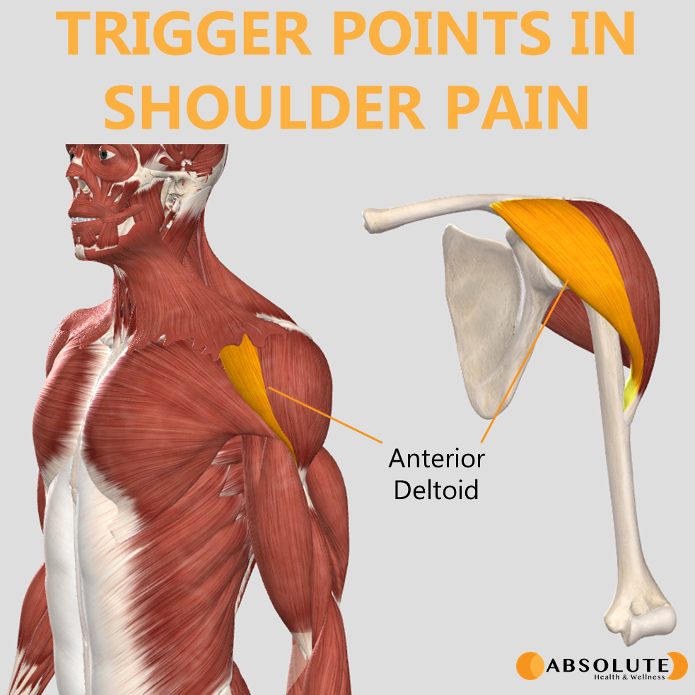 Musculoskeletal model highlighting trigger points in the anterior deltoid muscle, which are common in shoulder pain