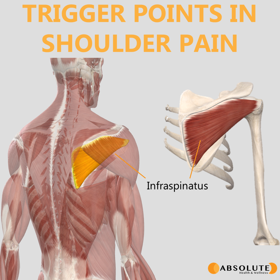 Musculoskeletal model highlighting trigger points in the infraspinatus muscle, which are common in shoulder pain