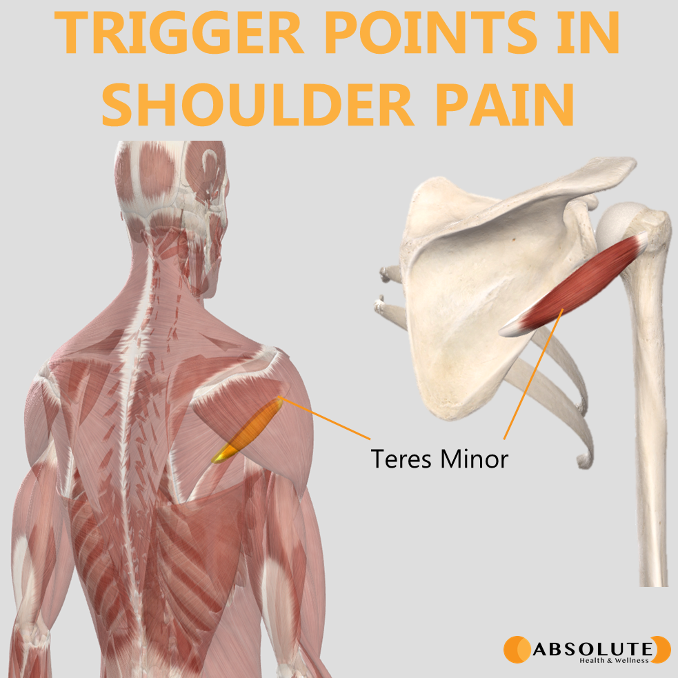Musculoskeletal model highlighting trigger points in the teres minor muscle, which are common in shoulder pain