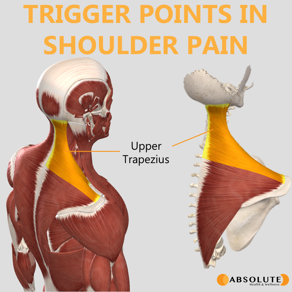 Musculoskeletal model highlighting trigger points in the upper trapezius muscle, which are common in shoulder pain